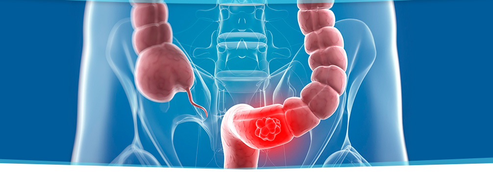 Bowel incontinence in Vero Beach